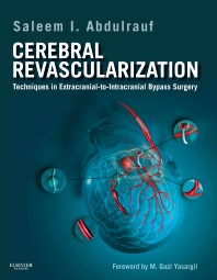Cerebral Revascularization - 1st Edition - ISBN: 9781437717853, 9781437736397