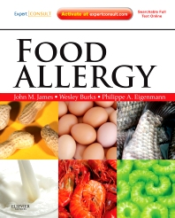 Cover image for Food Allergy