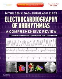 Cover image for Electrocardiography of Arrhythmias: A Comprehensive Review