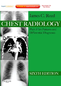 Cover image for Chest Radiology