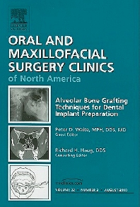 Cover image for Alveolar Bone Grafting Techniques for Dental Implant Preparation, An Issue of Oral and Maxillofacial Surgery Clinics