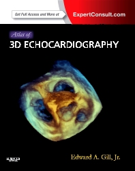 Atlas of 3D Echocardiography