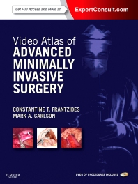 Cover image for Video Atlas of Advanced Minimally Invasive Surgery