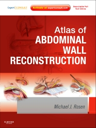Atlas of Abdominal Wall Reconstruction - 1st Edition - ISBN: 9781437727517, 9781455740307