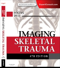 Cover image for Imaging Skeletal Trauma