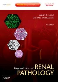 Diagnostic Atlas of Renal Pathology E-Book, 2nd Edition,Agnes Fogo,Michael Kashgarian,ISBN9781437737691