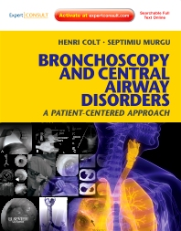 Cover image for Bronchoscopy and Central Airway Disorders