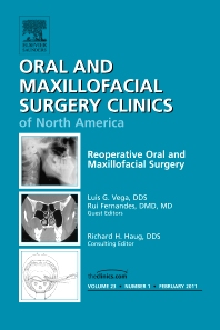 Cover image for Reoperative Oral and Maxillofacial Surgery, An Issue of Oral and Maxillofacial Surgery Clinics