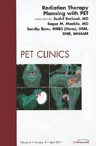 Cover image for Radiation Therapy Planning with PET, An Issue of PET Clinics