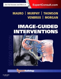 Cover image for Image-Guided Interventions