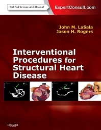 Interventional Procedures for Adult Structural Heart Disease - 1st Edition - ISBN: 9781455707584, 9780323186483