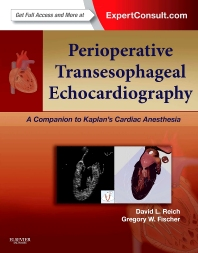 Cover image for Perioperative Transesophageal Echocardiography