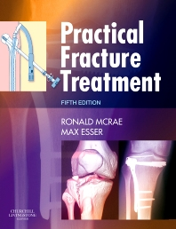 Practical Fracture Treatment E-Book, 5th Edition,Ronald McRae,Max Esser,ISBN9781455725236