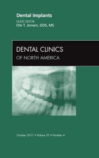 Cover image for Dental Implants, An Issue of Dental Clinics