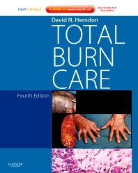 Cover image for Total Burn Care E-Book