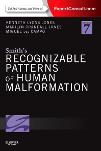 Smith's Recognizable Patterns of Human Malformation, 7th Edition,Kenneth Jones,Marilyn Jones,Miguel del Campo,ISBN9781455738113