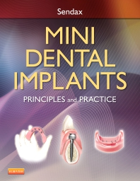 Cover image for Mini Dental Implants