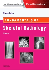 Fundamentals of Skeletal Radiology - 4th Edition - ISBN: 9781455751549, 9780323246835