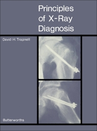 Principles of X-Ray Diagnosis - 1st Edition - ISBN: 9781483167909, 9781483195384