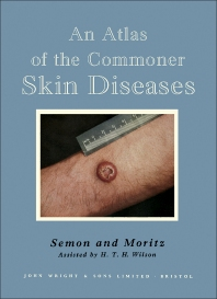 An Atlas of the Commoner Skin Diseases - 5th Edition - ISBN: 9781483229515, 9781483281216