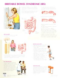 Cover image for Irritable Bowel Syndrome Chart