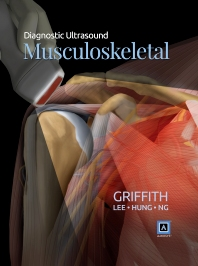 Diagnostic Ultrasound: Musculoskeletal - 1st Edition - ISBN: 9781937242176, 9780323375429