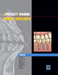 Cover image for Specialty Imaging: Dental Implants