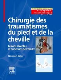 Chirurgie des traumatismes du pied et de la cheville - 1st Edition - ISBN: 9782294050206, 9782994100461