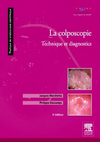 La colposcopie - 3rd Edition - ISBN: 9782294102387, 9782294718281