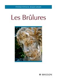 Les brûlures - 1st Edition - ISBN: 9782294701511, 9782294716836