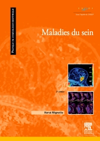 Maladies du sein - 2nd Edition - ISBN: 9782294705434, 9782294717567
