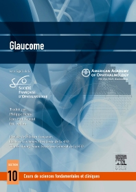 Glaucome  - 1st Edition - ISBN: 9782294709104