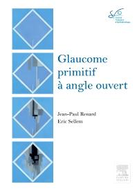 Glaucome primitif à angle ouvert - 1st Edition - ISBN: 9782294740640, 9782294709982
