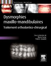 Dysmorphies maxillo-mandibulaires - 1st Edition - ISBN: 9782294710070, 9782294725845