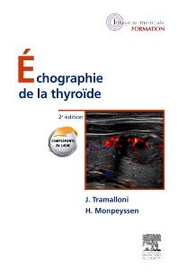 Échographie de la thyroïde - 2nd Edition - ISBN: 9782294711282, 9782294725821