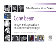 Cone beam : Imagerie diagnostique en odontostomatologie - 1st Edition - ISBN: 9782294711886, 9782294718137