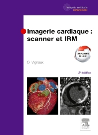 Imagerie cardiaque : scanner et IRM - 2nd Edition - ISBN: 9782294712258, 9782294718014
