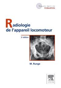 Radiologie de l'appareil locomoteur - 3rd Edition - ISBN: 9782294713354, 9782294725760