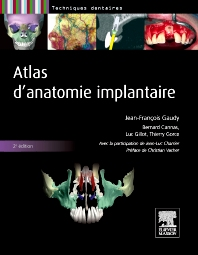 Atlas d'anatomie implantaire - 2nd Edition - ISBN: 9782294713798, 9782294725722