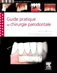 Guide pratique de chirurgie parodontale - 1st Edition - ISBN: 9782294714467, 9782294725210