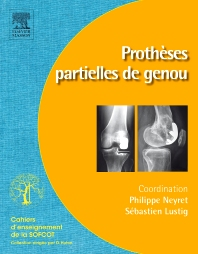 Prothèses partielles de genou - 1st Edition - ISBN: 9782294714573, 9782294730672