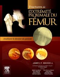 Fractures de l'extrémité proximale du fémur - 1st Edition - ISBN: 9782294715327, 9782294728471