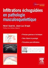 Infiltrations échoguidées - 1st Edition - ISBN: 9782294715860, 9782294729539
