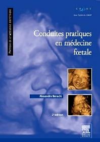 Conduites pratiques en médecine foetale - 2nd Edition - ISBN: 9782294732737, 9782294732751