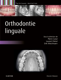 Orthodontie linguale - 1st Edition - ISBN: 9782294734304, 9782294739446