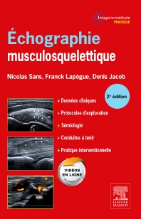 Echographie musculosquelettique - 2nd Edition - ISBN: 9782294735363, 9782294736322