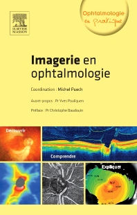 Imagerie en ophtalmologie - 1st Edition - ISBN: 9782294737022, 9782294737053