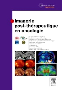 Imagerie post-thérapeutique en oncologie - 1st Edition - ISBN: 9782294738401, 9782294740572