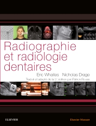 Radiographie et radiologie dentaires - 1st Edition - ISBN: 9782294743528, 9782294748660