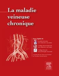 La maladie veineuse chronique - 1st Edition - ISBN: 9782294744907
